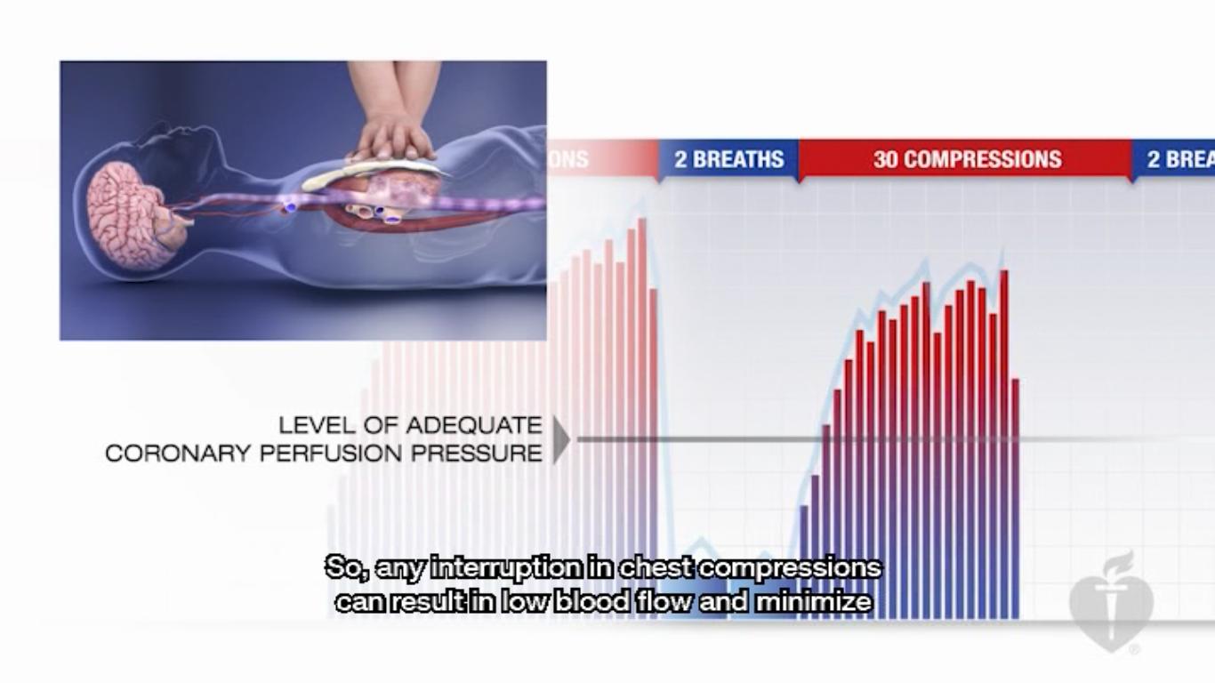 G2015英語版BLSプロバイダーコースDVDの映像