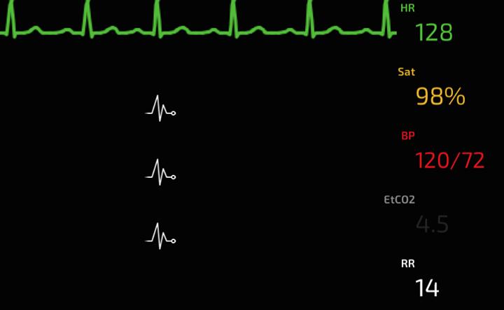 iPhoneの心電図モニターアプリ sim-mon