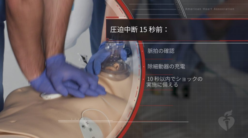 ACLS-G2020最新情報:心電図解析15秒前の除細動器事前充電